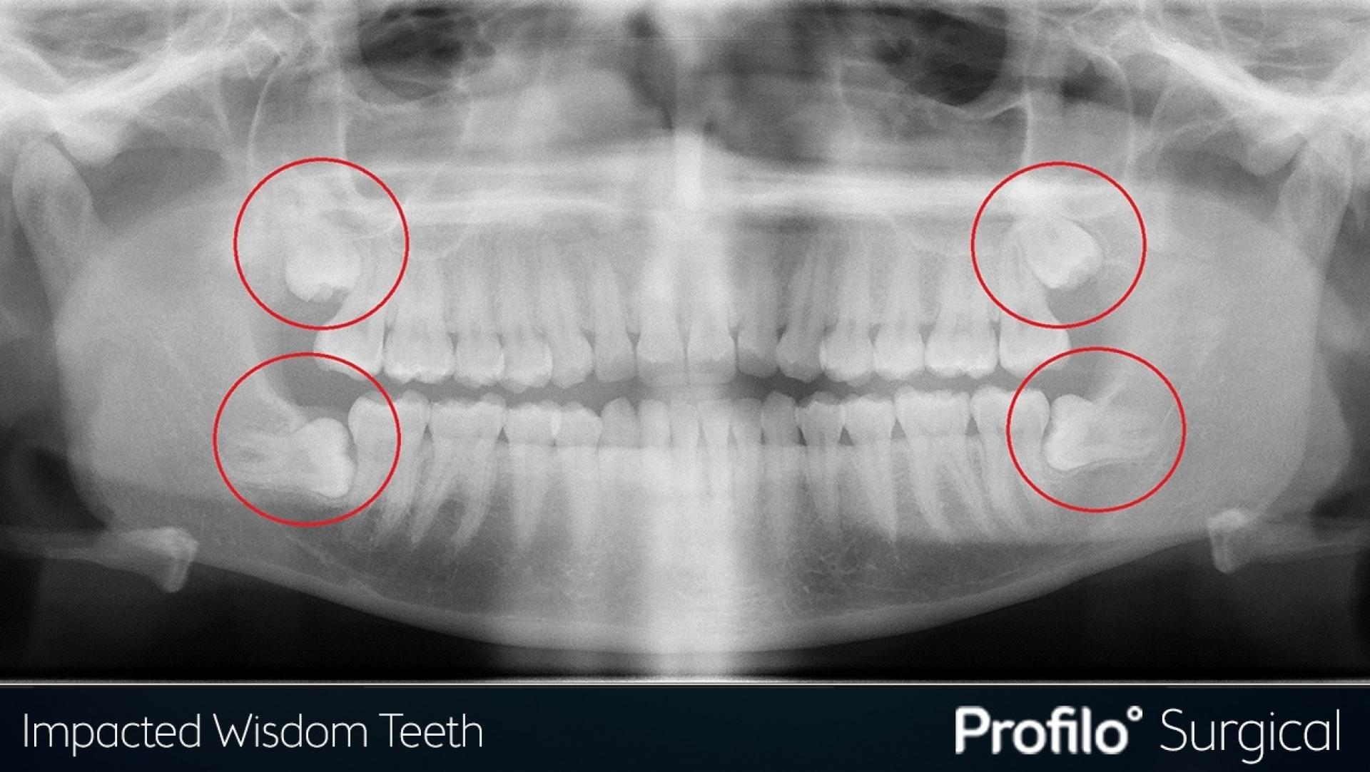 Blogs wisdom teeth 4