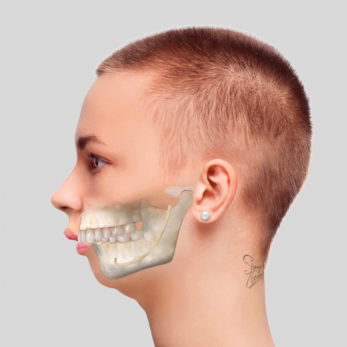 Procedures IMDO IMDO-Big-Overbite-Small-Jaw